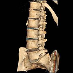 scanner rachis lombaire paris radiologie Bachaumont