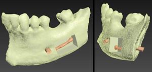 Impression 3D - radiologie paris IMPC Bachaumont