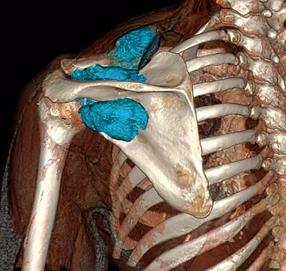 scanner omoplate tumeur osseuse 3D imagerie paris bachaumont