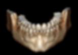 dentascanner cone beam radiologie paris centre bachaumont
