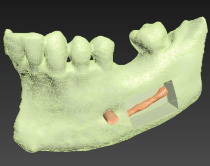 IMPRIMED3D : impression 3D !