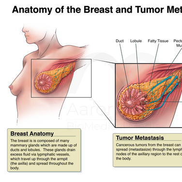 Medical Legal: Mastectomy and TRAM Flap