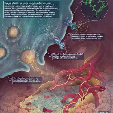 Molecular Poster: Combating Insulin Deficiency