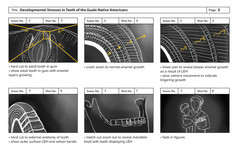 Preliminary Storyboard Three: Enamal Hypoplasia Animation