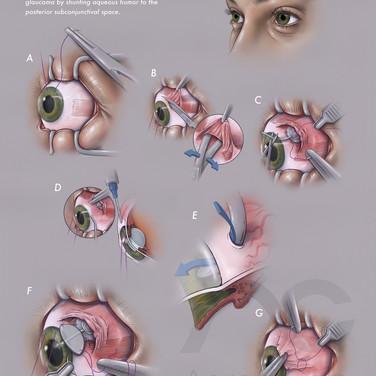 Aqueous Shunt Implantation Procedure