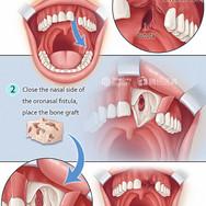 Alveolar Cleft Repair