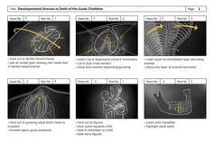 Preliminary Storyboard Two: Enamal Hypoplasia Animation