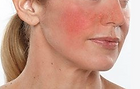 rosacea, what is rosacea, noncurable skin conditions