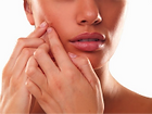acne, inflamed acne, non-inflamed acne, what causes acne, skin exams, treatment for acne