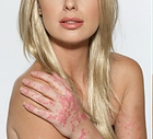 what is psoriasis, noncontagious skin conditions, chronic skin condition, symptoms of psoriasis, treating psoriasis, how is psoriasis treated