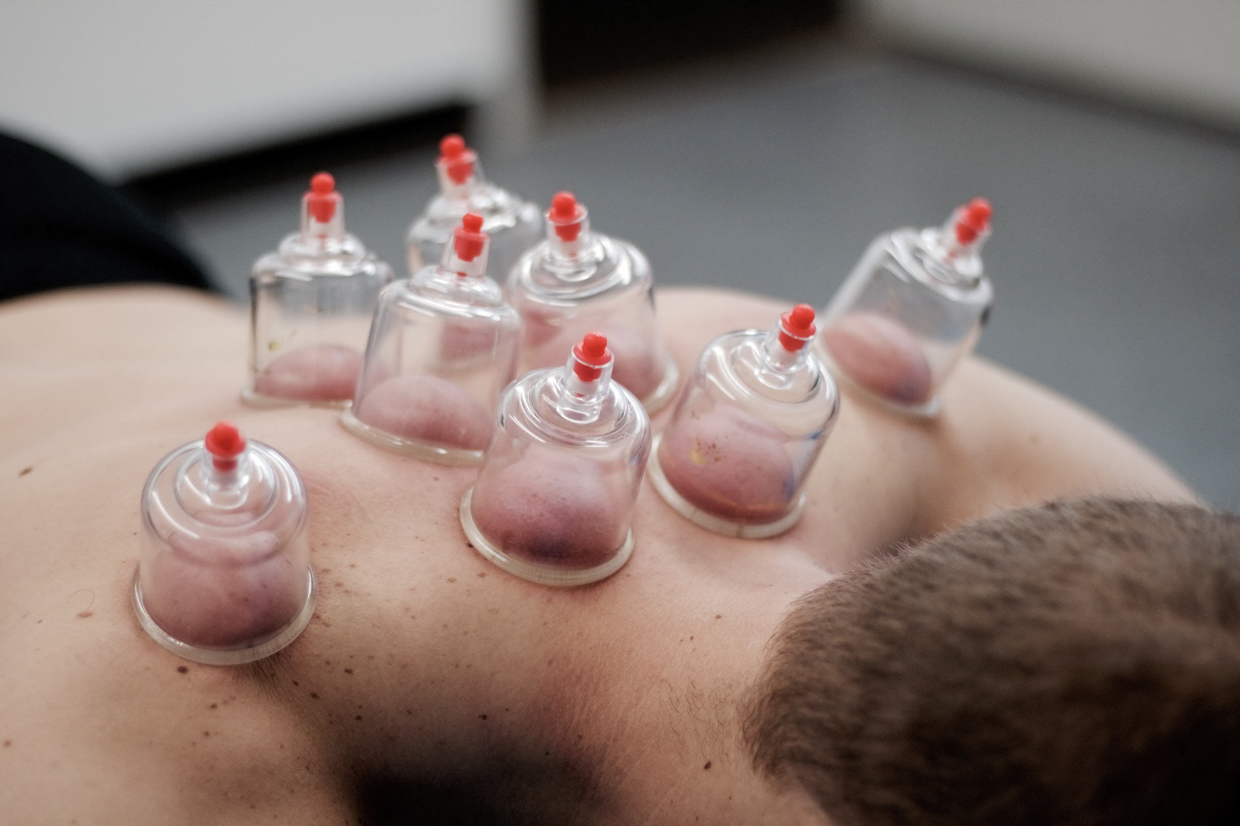 Systemic Cupping