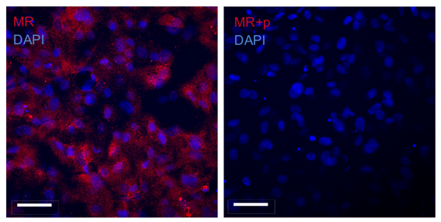 Mineralocorticoid receptor (MR) in a primary cultured trout gill epithelium model