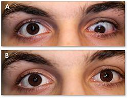 lentille-prothetique-centre-vision-lenti
