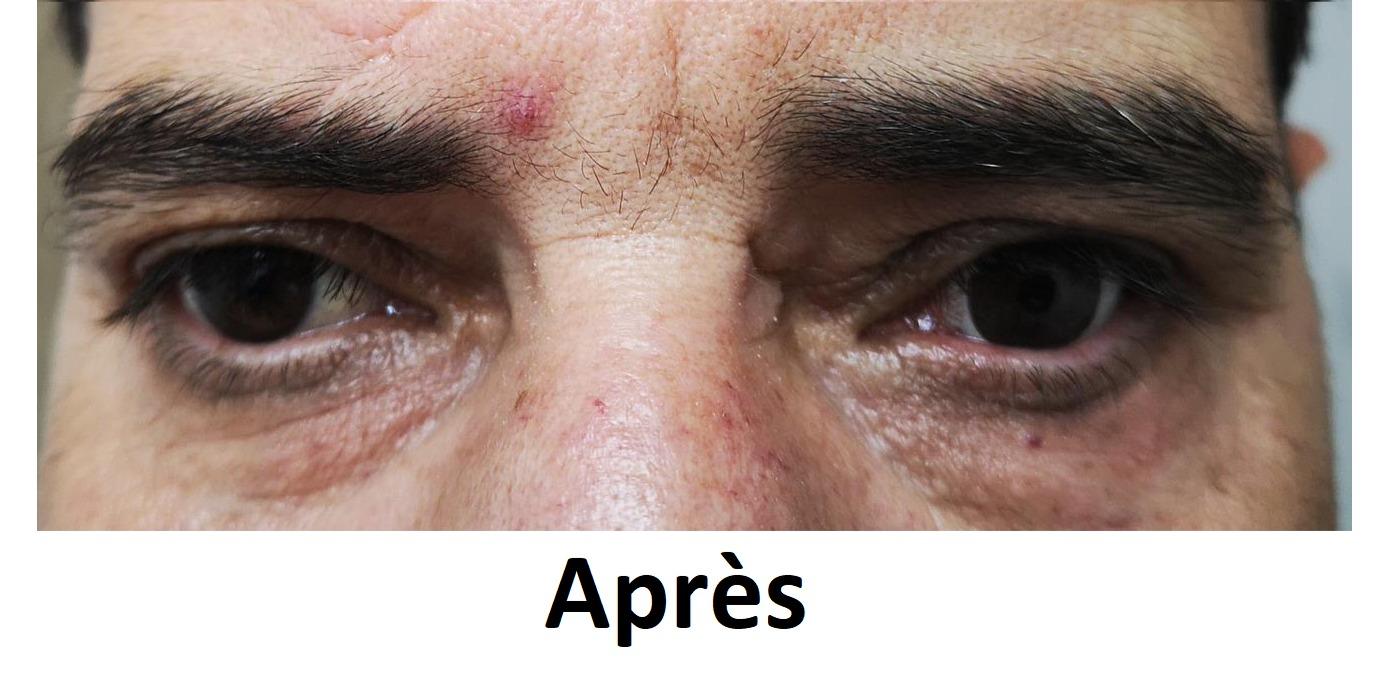 prothetique-centre-vision-lentilles-paca