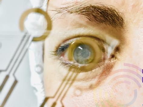 Capteur de lentilles de contact transparent: vers une détection intelligente des larmes