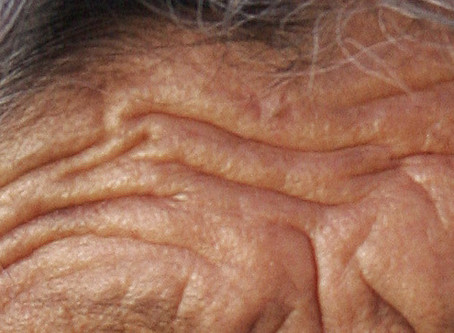What Causes Skin to Age and How to Prevent It?
