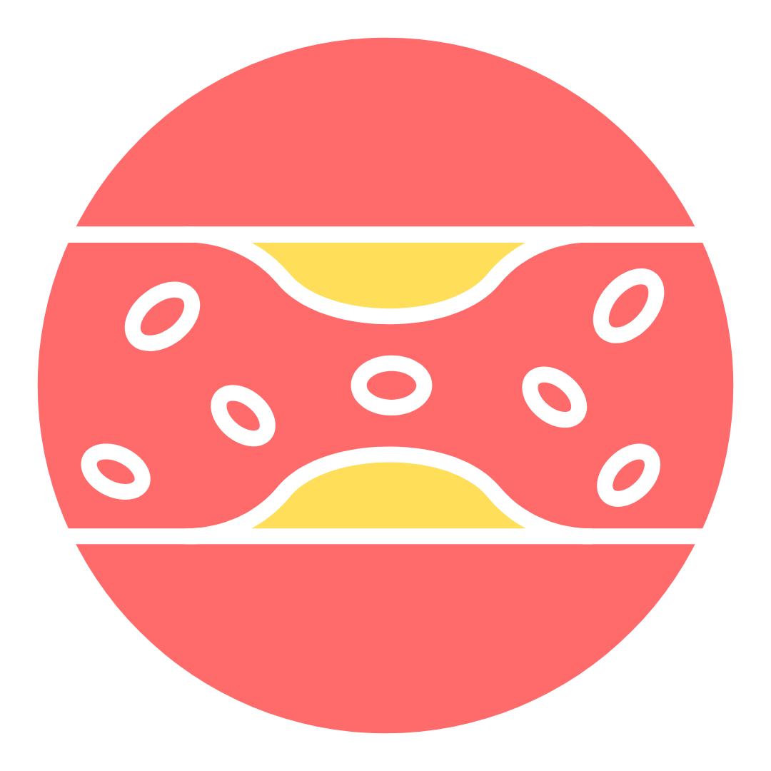 Cholesterol Profile - Chiswick