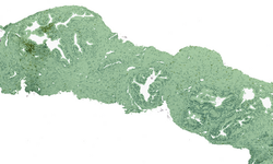 Tissue detection_CMYK