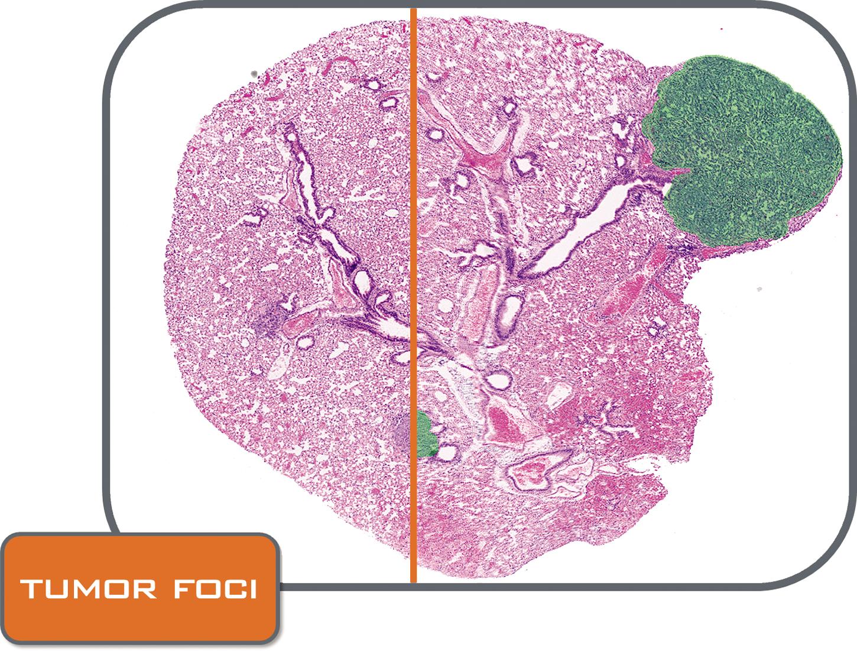HE tumor Foci folder_CMYK.png