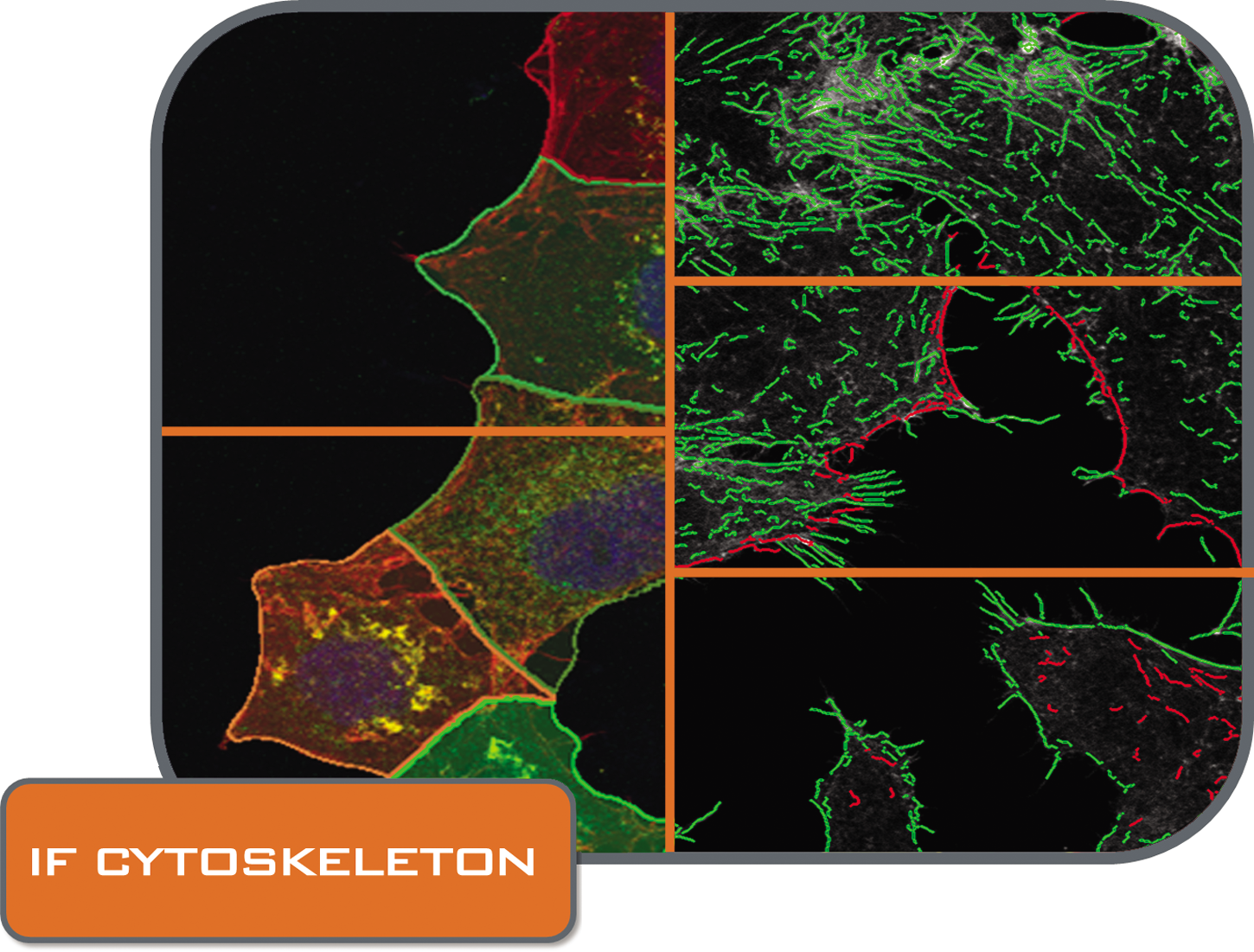 IF Cytoskeleton folder_CMYK.png