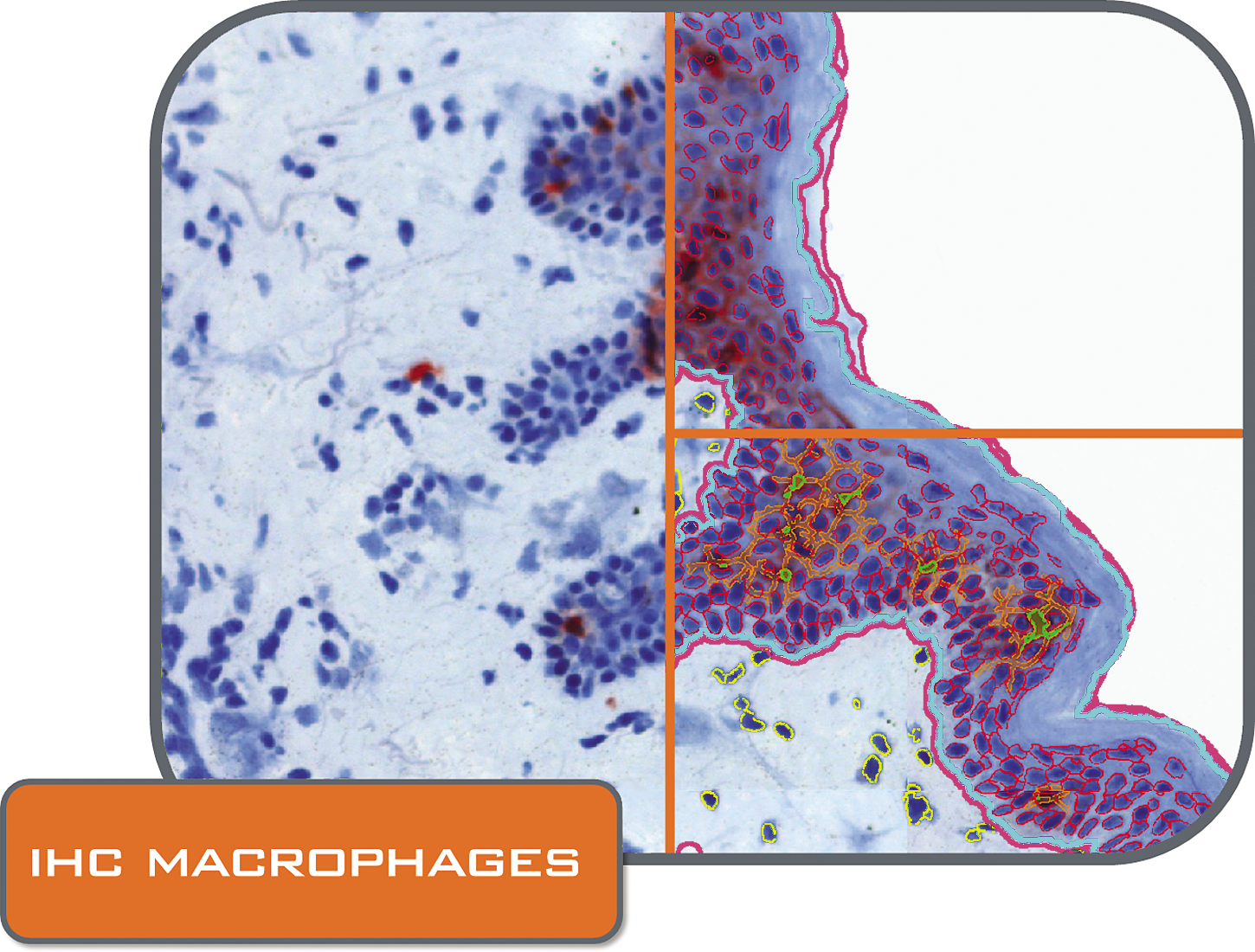 IHC macrophages folder_CMYK.png