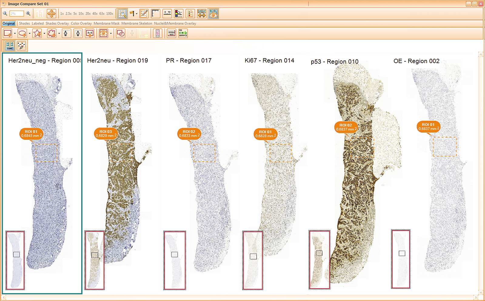 HiQ Screenshot 04 Multi Tissue (2)_CMYK