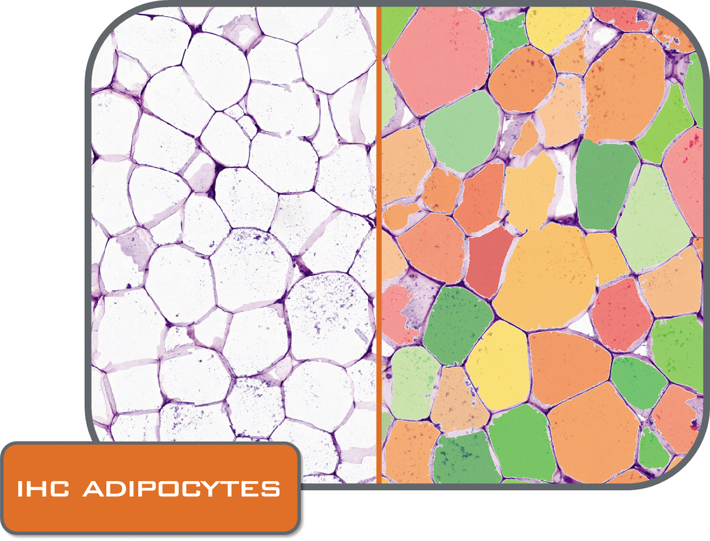 Adipocytes folder_CMYK.png