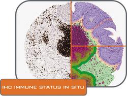 IHC Immune Status in Situ folder_CMYK.png