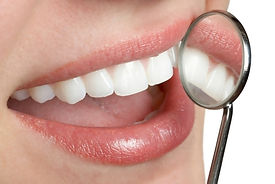 woman's smile with dental mirror depicting straight white beautiful teeth