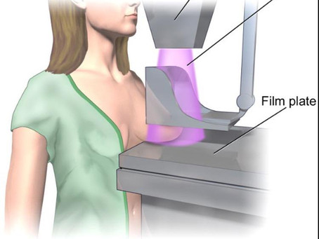 How safe are mammograms?