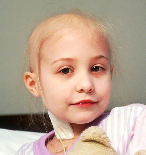 Pediatric%2520Cancer.%2520A%2520young%2520girl%2520with%2520acute%2520lymphocytic%2520leukemia%2520(