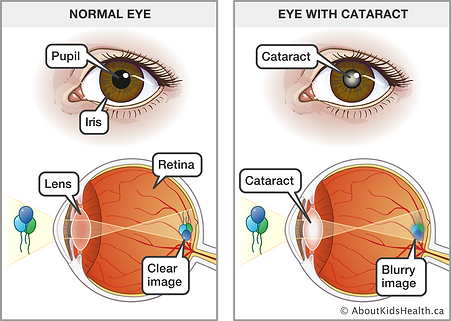 Cataract_V2_MED_ILL_EN.png