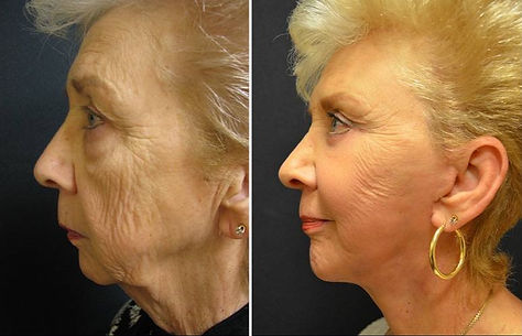 olde_woman_before_and_after_surgery-082e1f71fc03ad3e4610319a4f0cae37_edited.jpg