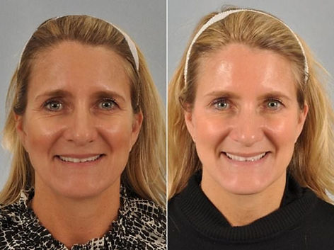 botox-before-after-12-1024x766.jpg