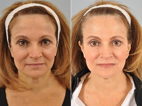 botox-before-after-10-1024x766.jpg