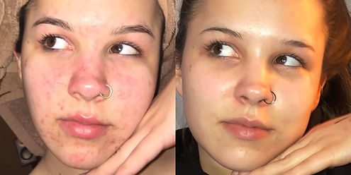 acne-treatment-results-1539364527.jpg