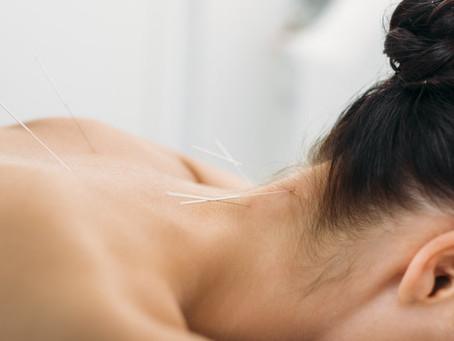 Acupuncture Alleviates Neck Pain, Restores ROM