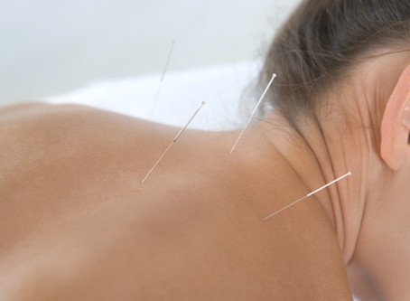 Acupuncture Fibromyalgia Relief Confirmed