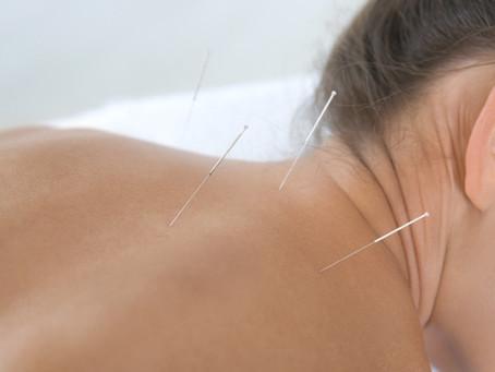 Acupuncture Fibromyalgia Relief Confirmed