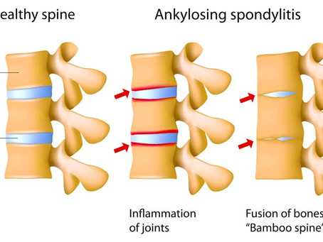 Acupuncture Ankylosing Spondylitis Relief Confirmed