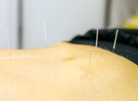 Acupuncture Alleviates Depression And Benefits The Brain