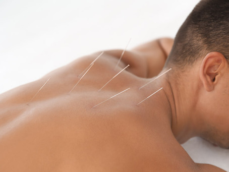Acupuncture Improves Bone Density For Osteoporosis Patients