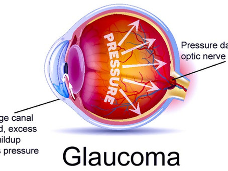 Acupuncture For Glaucoma Eyesight Protection
