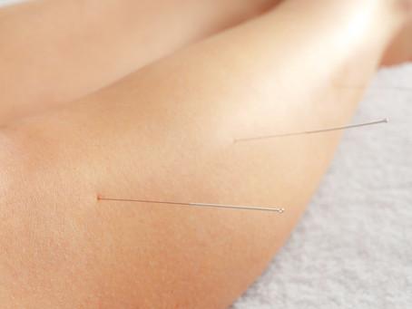 Acupuncture Knee Arthritis Treatments Found Effective