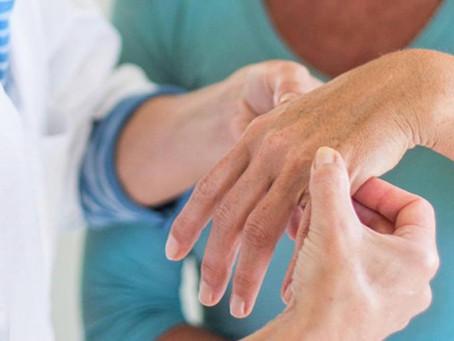 ¿Qué es la Artrosis del pulgar o Rizartrosis?