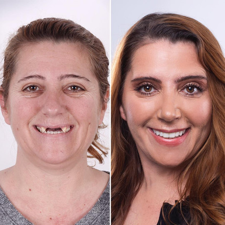 Zirkor Dental Implant Process - Full Dental Implant Restoration