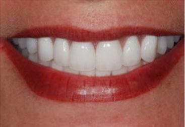 Cosmetic-Denture_edited.jpg