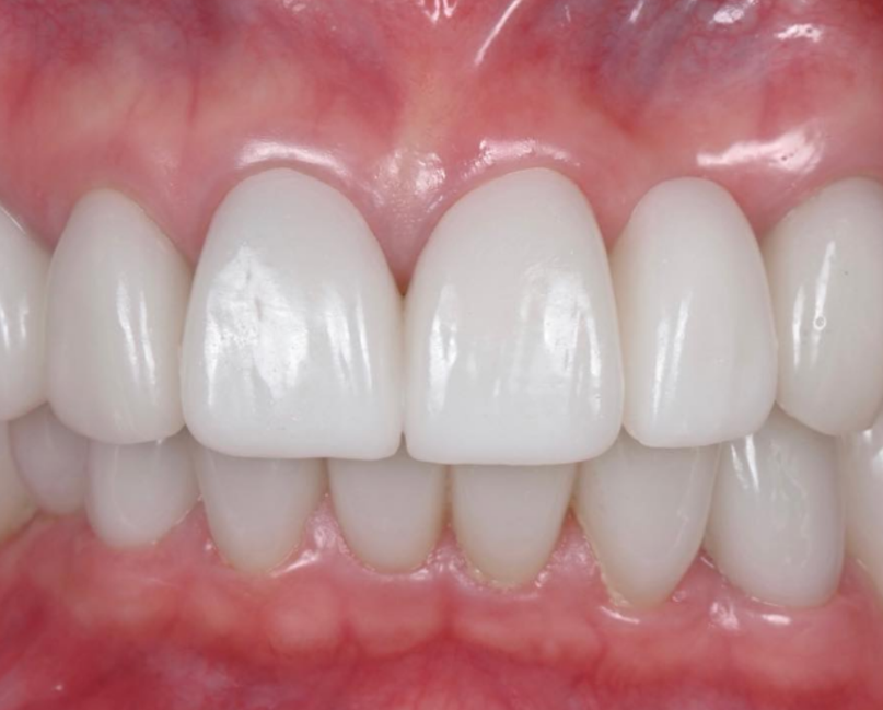 Zirconia Full Mouth Implants & Crowns