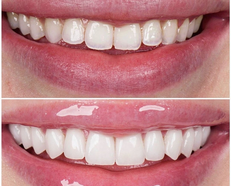 Full Mouth Rehabilitation with Porcelain Veneers