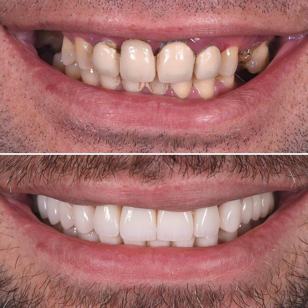 Zirkor Dental Implant Process - Full Dental Implant Restoration